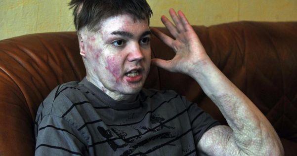 L'école peut devenir un cauchemar, la triste histoire de Jonathan, un ado de 16 ans.