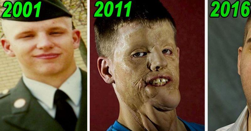 En 2001 un accident de voiture le d figure mais il for Astuce maison pour avoir un beau visage