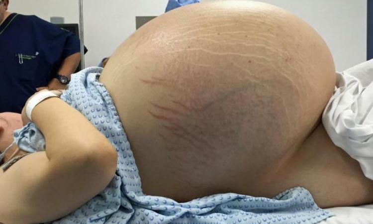 Vous pensez que cette femme est enceinte attendez de - Combien de temps porter bas de contention ...