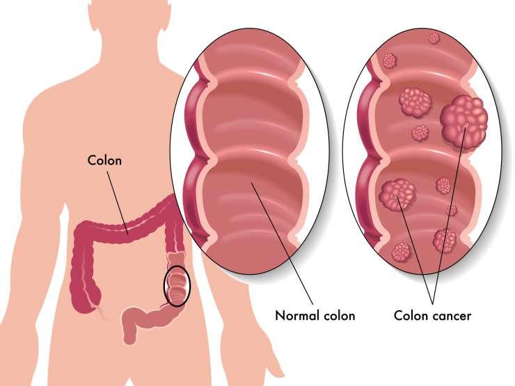 Source de l'image : pregnancywellnesstips